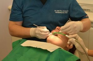 let-taipei-invisalign-buck-teeth-recommend-beautiful-teeth